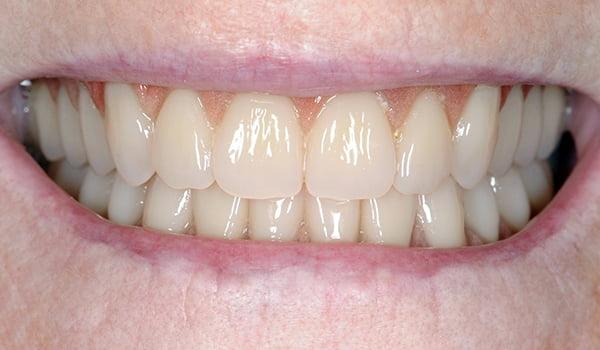 implant-denture-04