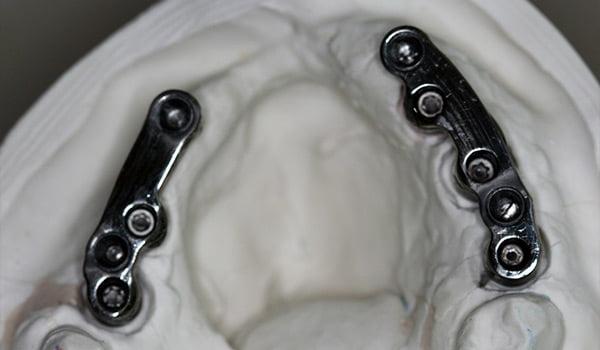 partial-implant-01