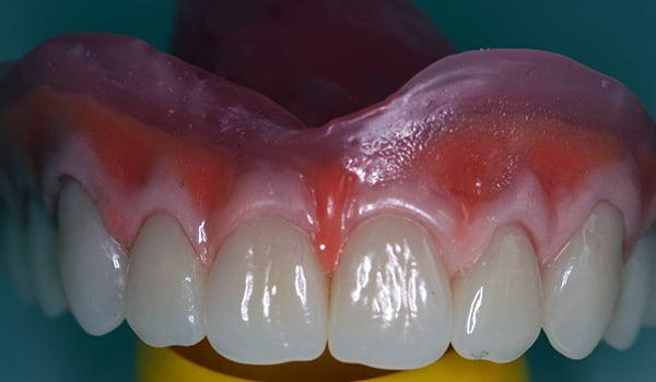 partial-implant-04